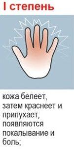 1 степень обморожения
