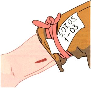 подложите бумажку под перевязочный материал с указанным временем