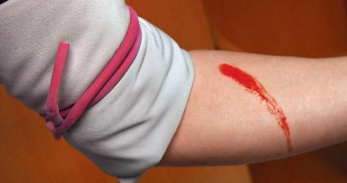 В холодное время года кровоостанавливающий жгут накладывается