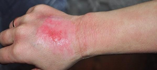 При ожогах первой степени появляются покраснение кожи, опухлость, неприятное жжение и боли