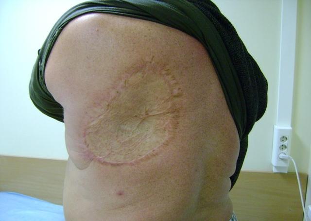 После заживания у человека на коже на всю жизнь остаются большие язвы и рубцы