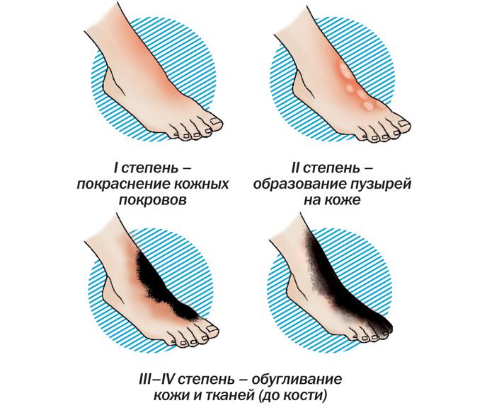 Оценка степени повреждения играет важную роль в дальнейшем лечении