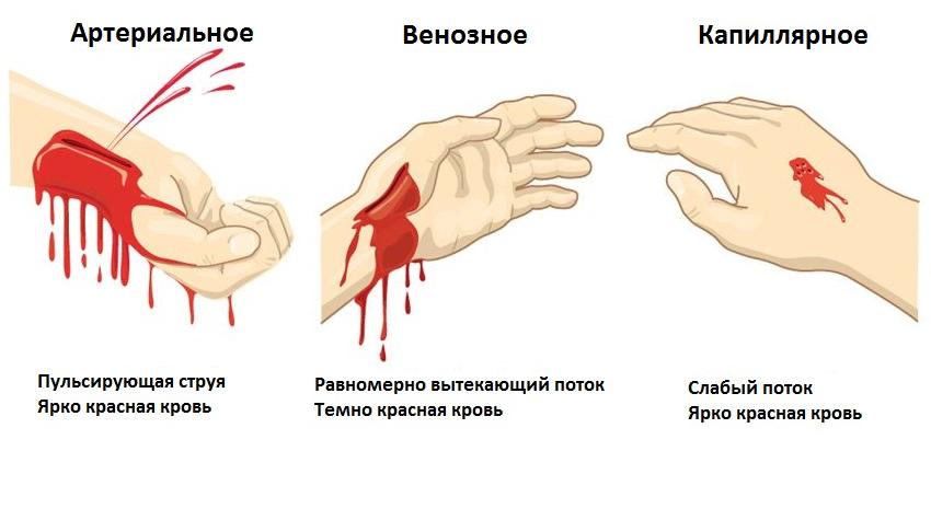 Виды наружных кровопотерь