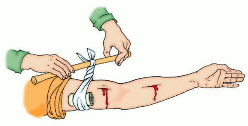 Чтобы затянуть жгут можно использовать любую палку