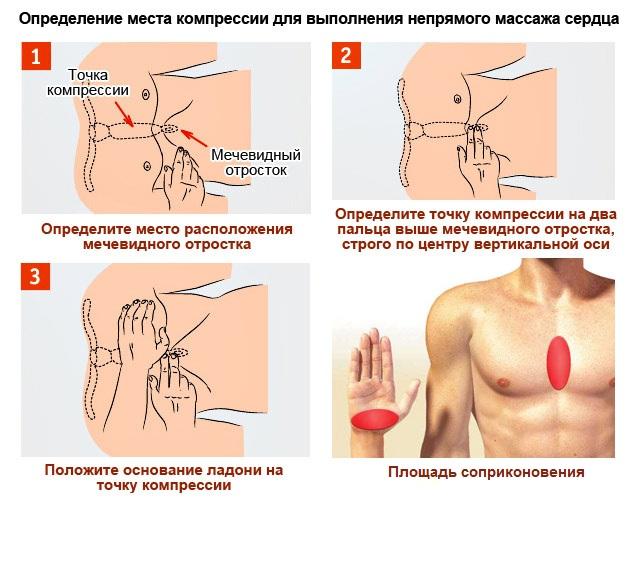 Найдите точку приложения – границу между средней и нижней третью грудины, или место на 2 пальца выше мечевидного отростка