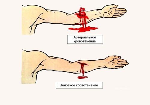 Показания для наложения венозных жгутов