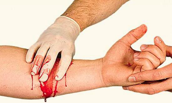 Абсолютным показанием для наложения жгута служит наружное кровотечение из артериального сосуда