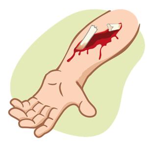 При открытых видах перелома на поверхности кожи видны костные элементы