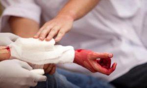 Степень кровопотери влияет на принятие решения, скорость перевозки пациента в больницу