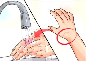 Сделать первую обработку лучше с хозяйственным мылом