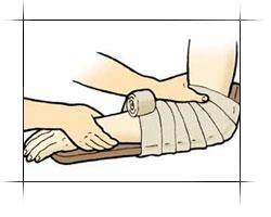 На руку накладывают шину и стягивают до полной неподвижности