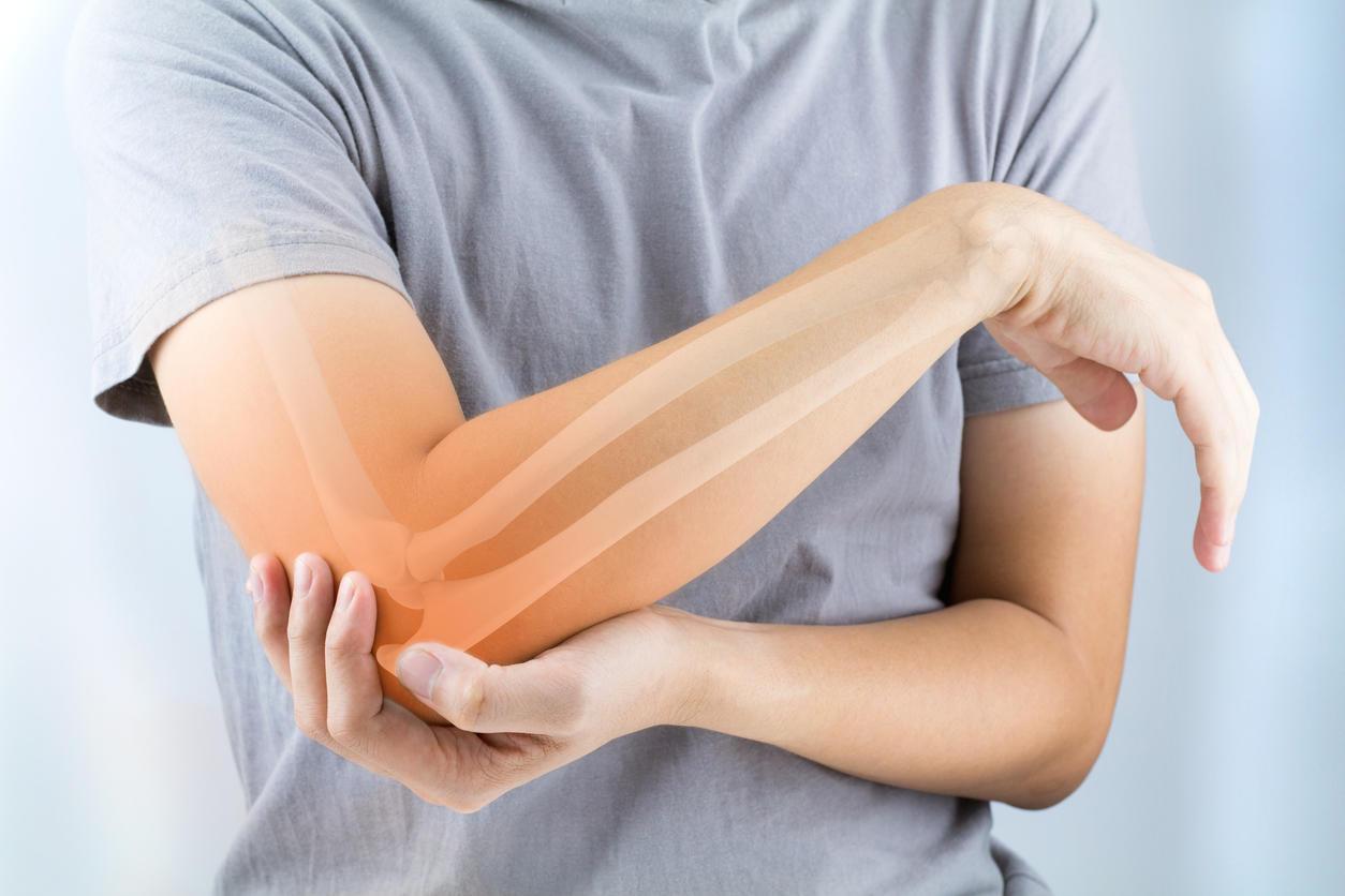 Вывих представляет собой смещение суставов с утратой основных функций