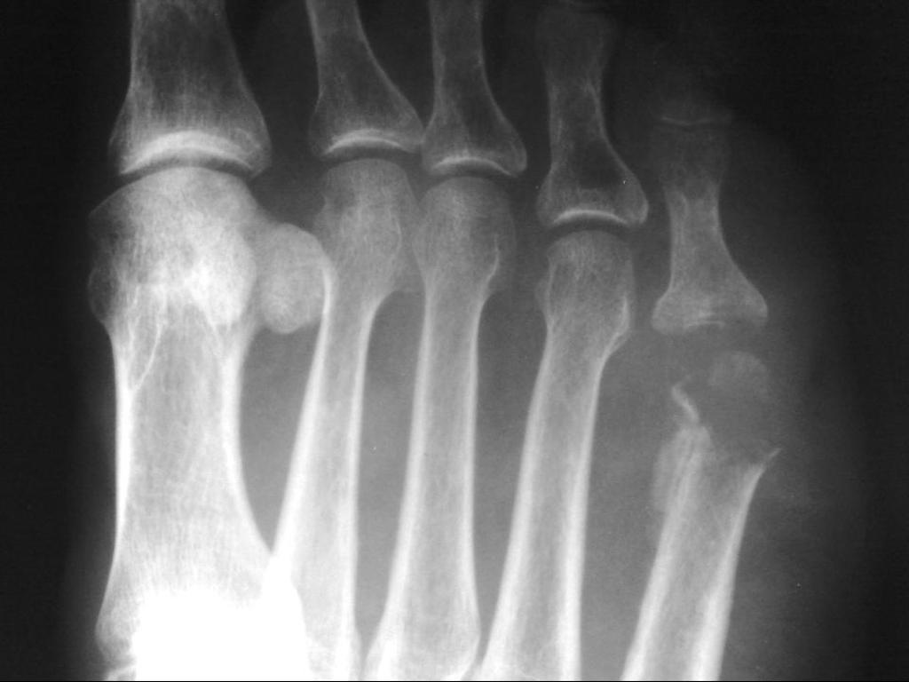 Рентгенография сделает вывод о целостности сустава, костей, органов брюшной полости
