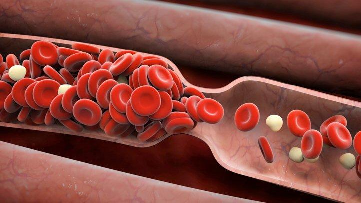 Основная причина: процесс образования тромбов в сосудах