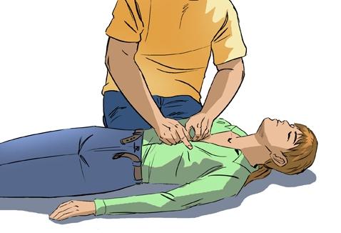 Человека успокаивают, освобождают от стесняющей одежды и вызывают скорую помощь