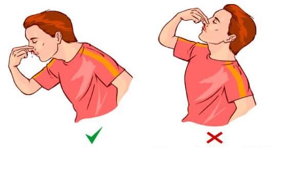Пострадавшему нельзя запрокидывать голову и делать резких движений