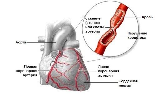Нарушения кровообращения из-за закупоривания артерий