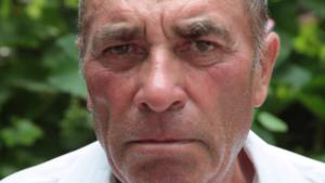 Лицо краснеет, отмечается повышенное потоотделение