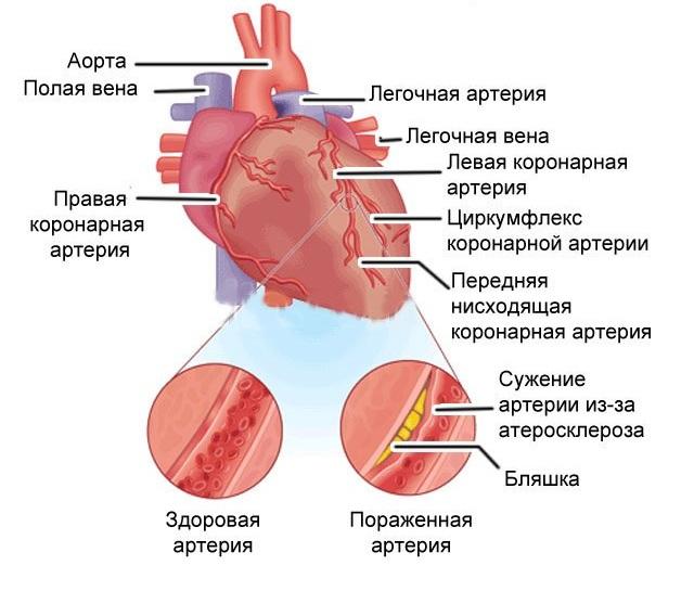Часто выступает в качестве предшествующего инфарктного состояния