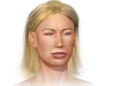 Одутловатость появляется на щеках, глазах, носу, ушах и губах и даже языке