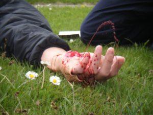 Артериальное кровотечение является самым опасным для человека