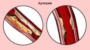 Нарушение прохождения крови по коронарным артериям