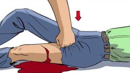 При ранении крупных артерий зажмите артерию кулаком