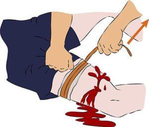 Затягивайте жгут пока кровь полностью не остановится