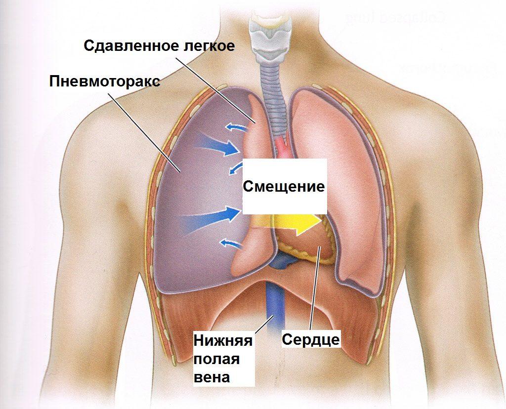 Из-за нарушения в дыхании быстро развивается сердечно-сосудистая аномалия или недостаточность