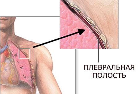 Сохранение воздуха происходит между листками плевральной ткани