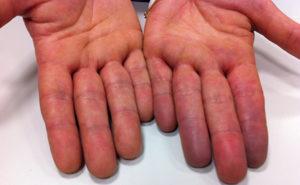 Из-за недостатка кислорода кожные покровы синеют