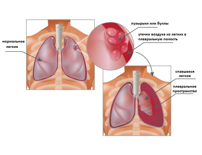 Помощь при спонтанном пневмотораксе необходимо оказать быстро, так как эта форма склонна к прогрессированию симптомов