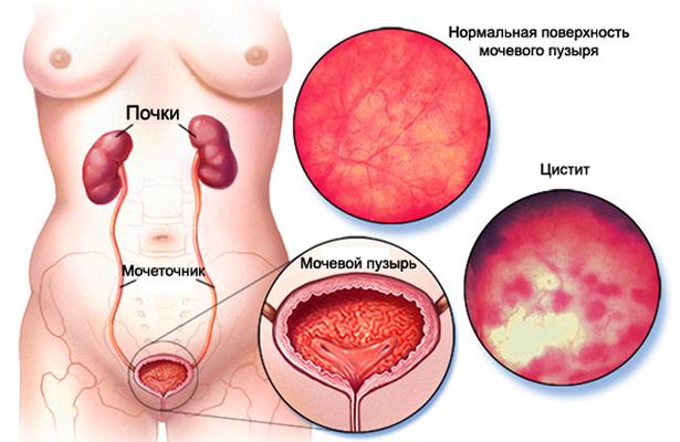 Как выглядит мочевой пузырь при цистите