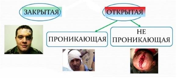 Виды мозговых травм