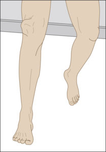 Пострадавший не может опереться на ногу