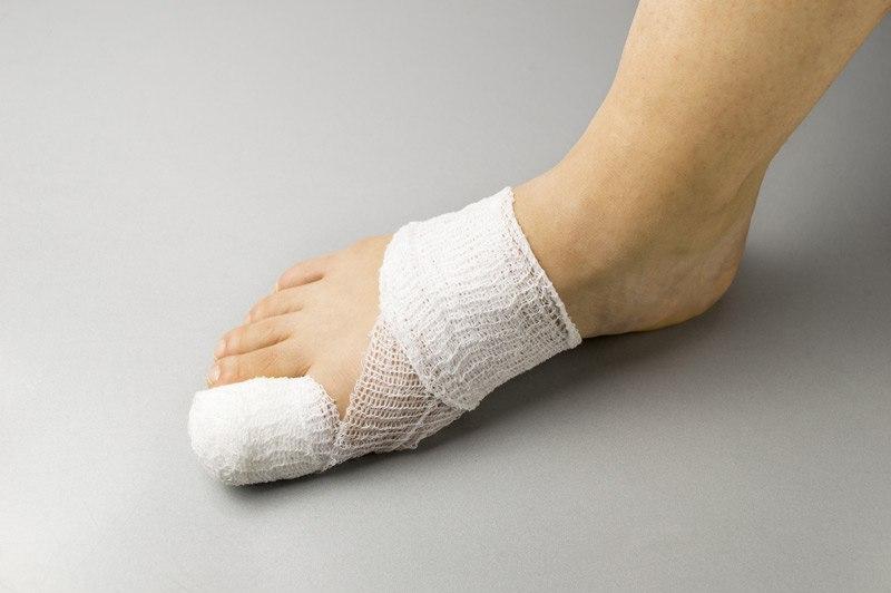Не следует накладывать повязку слишком плотно, чтобы не нарушить кровообращение в фаланге