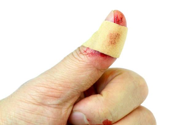Эластичный бинт на большой палец руки — Все про суставы