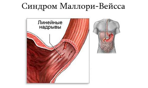 Возникает из-за разрыва слизистой, находящейся на границе пищевода и желудка