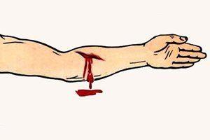 При наружном кровяная масса выступает за пределы кожных покровов