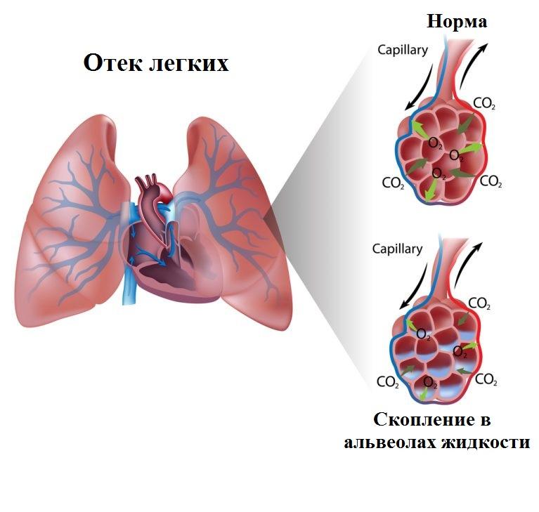 Нарушение функционирования дыхательных путей связано со скоплением жидкости