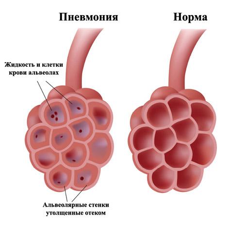 Кровоизлияние всегда присутствует при развитии инфаркта лёгкого на фоне пневмонии
