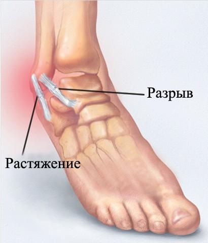 Травма возникает, если движения слишком резкие и отрывистые