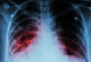 Причинами развития патологии могут стать хронический бронхит, астма, туберкулез