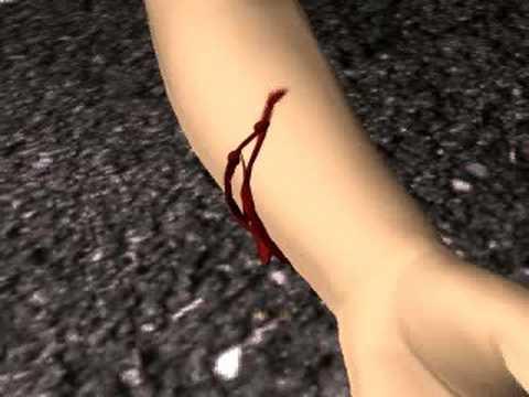Из повреждённого сосуда выступает тёмно-красная кровь