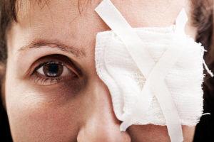 Необходимо закрыть стерильной повязкой глазное яблоко